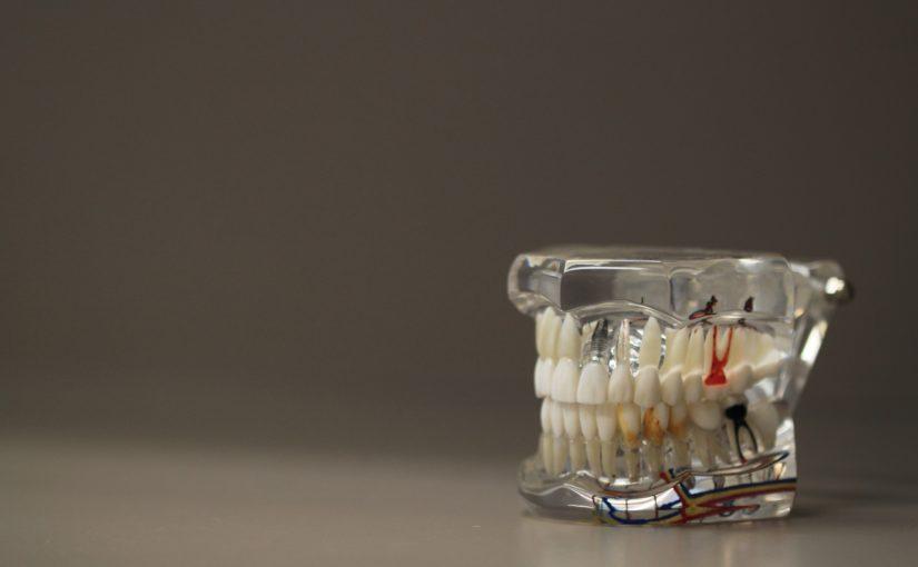 Zła sposób żywienia się to większe ubytki w jamie ustnej a również ich brak